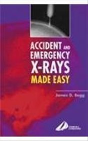 Accicent & Emergency X-Rays Made Easy International Edition -